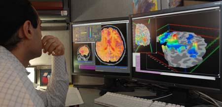 Neuro Sesgos cognitivos